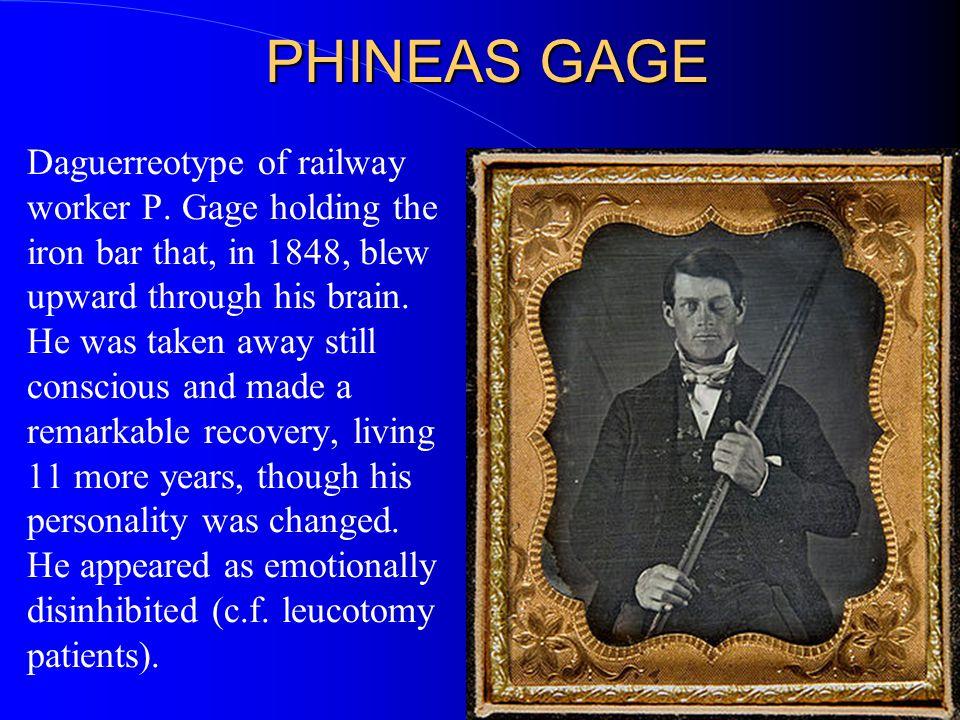 PHINEAS GAGE Daguerreotype of railway worker P.