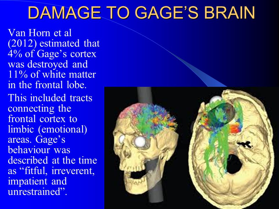 DAMAGE TO GAGE'S BRAIN Van Horn et al (2012) estimated that 4% of Gage's cortex was destroyed and 11% of white matter in the frontal lobe.