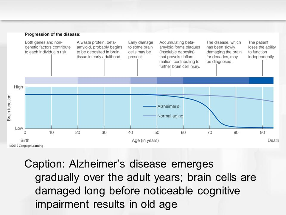 Caption: Alzheimer's disease emerges gradually over the adult years; brain cells are damaged long before noticeable cognitive impairment results in ol