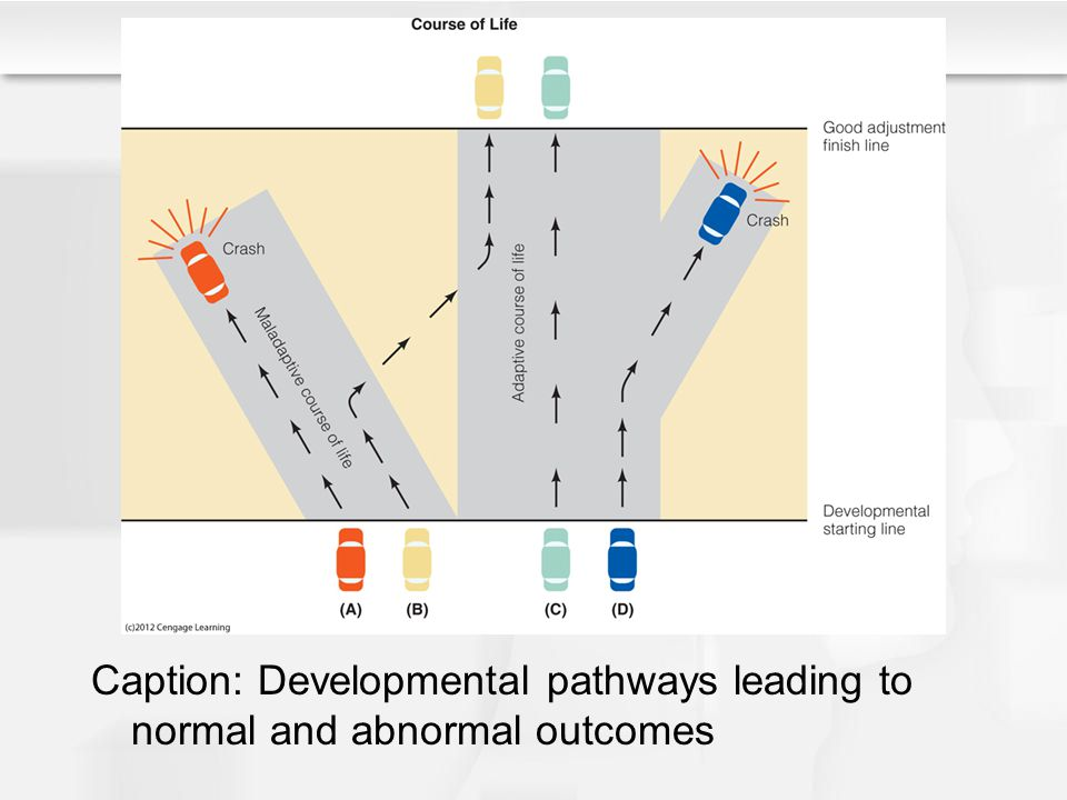 Caption: Developmental pathways leading to normal and abnormal outcomes