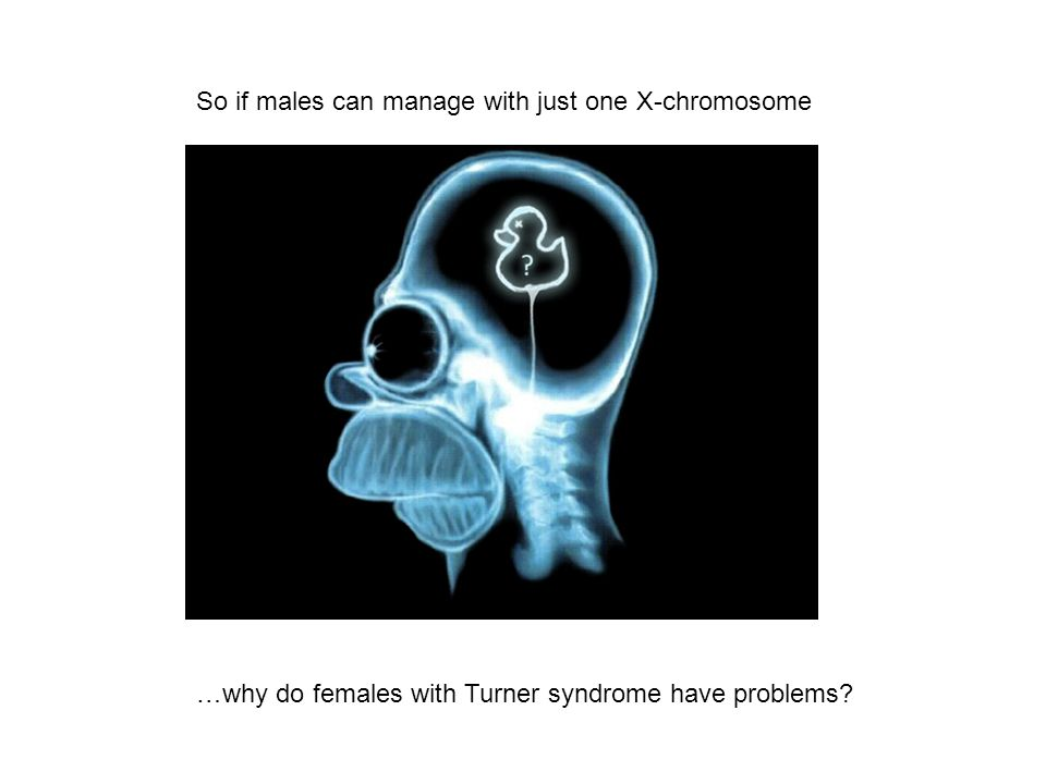So if males can manage with just one X-chromosome …why do females with Turner syndrome have problems?