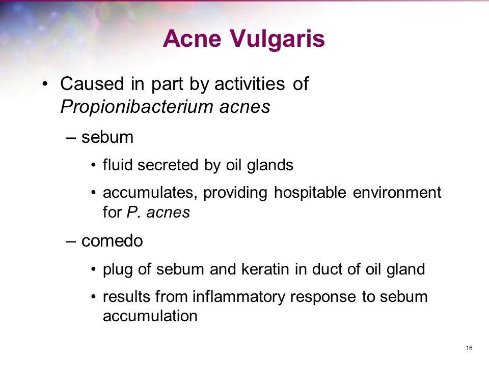 Acne Vulgaris Caused in part by activities of Propionibacterium acnes –sebum fluid secreted by oil glands accumulates, providing hospitable environmen