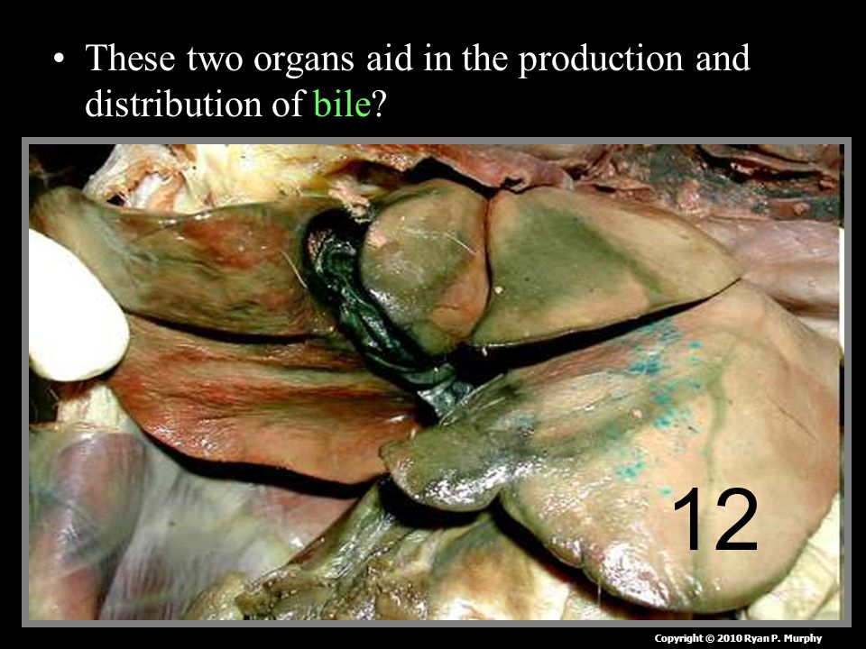 These two organs aid in the production and distribution of bile 12 Copyright © 2010 Ryan P. Murphy
