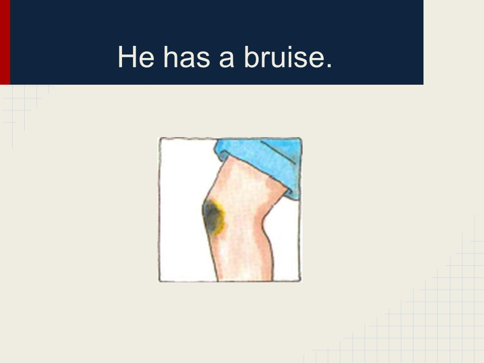 He has a bruise.