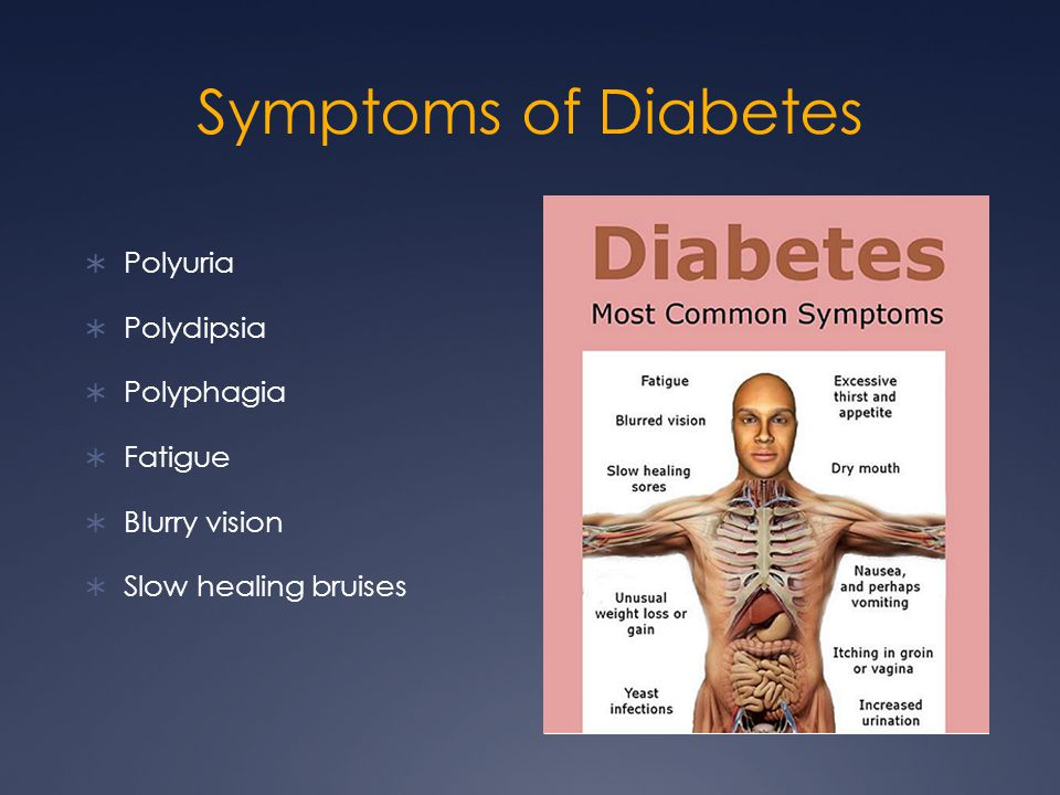 Symptoms of Diabetes  Polyuria  Polydipsia  Polyphagia  Fatigue  Blurry vision  Slow healing bruises