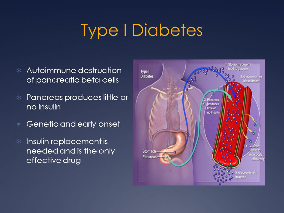 Type I Diabetes  Autoimmune destruction of pancreatic beta cells  Pancreas produces little or no insulin  Genetic and early onset  Insulin replace