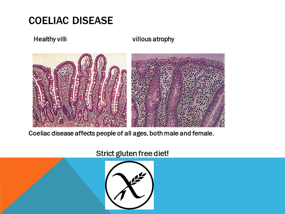 COELIAC DISEASE Healthy villi villous atrophy Coeliac disease affects people of all ages, both male and female.