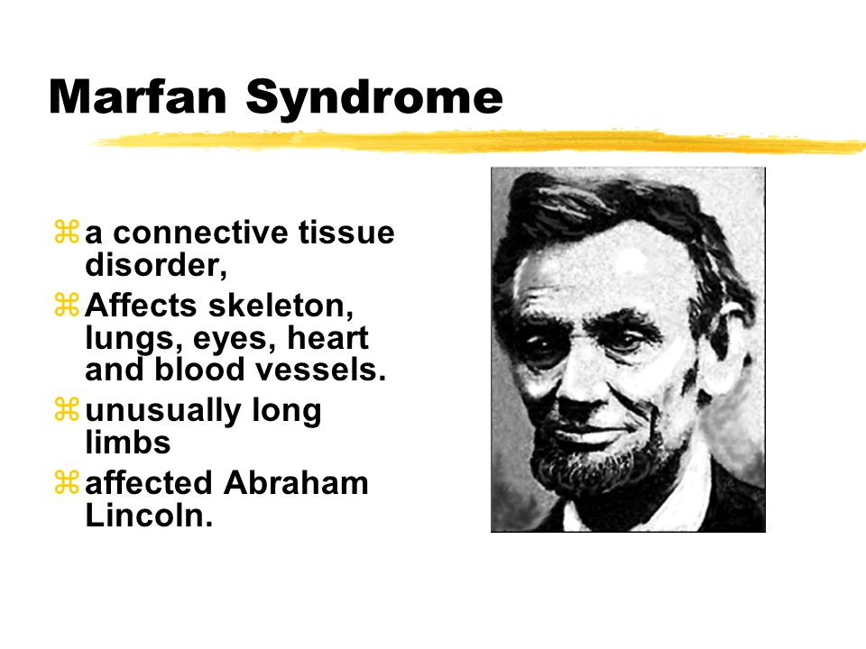 Marfan Syndrome za connective tissue disorder, zAffects skeleton, lungs, eyes, heart and blood vessels.