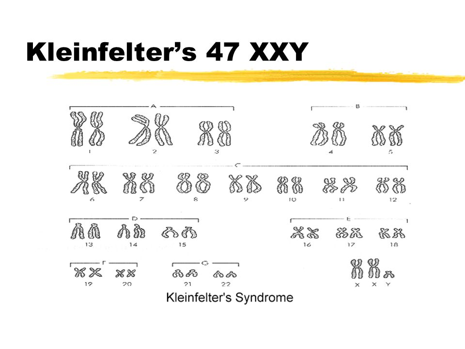 Kleinfelter's 47 XXY