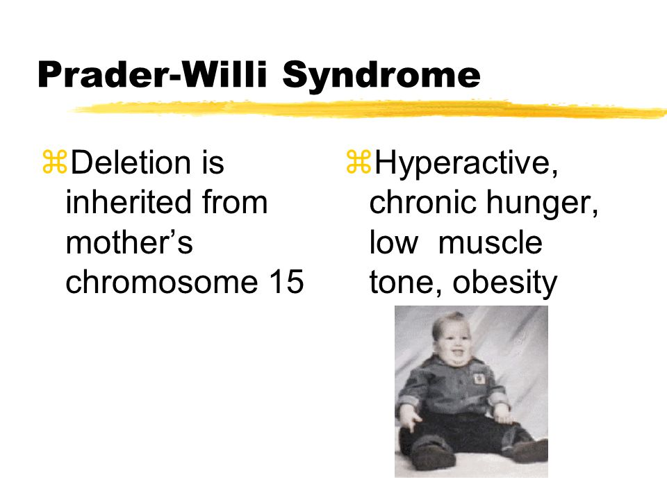 Prader-Willi Syndrome zDeletion is inherited from mother's chromosome 15 zHyperactive, chronic hunger, low muscle tone, obesity