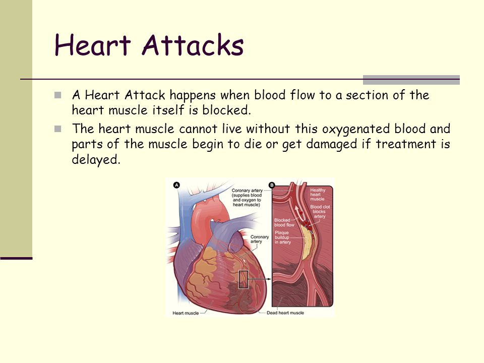 Heart attack- What are the warning signs.