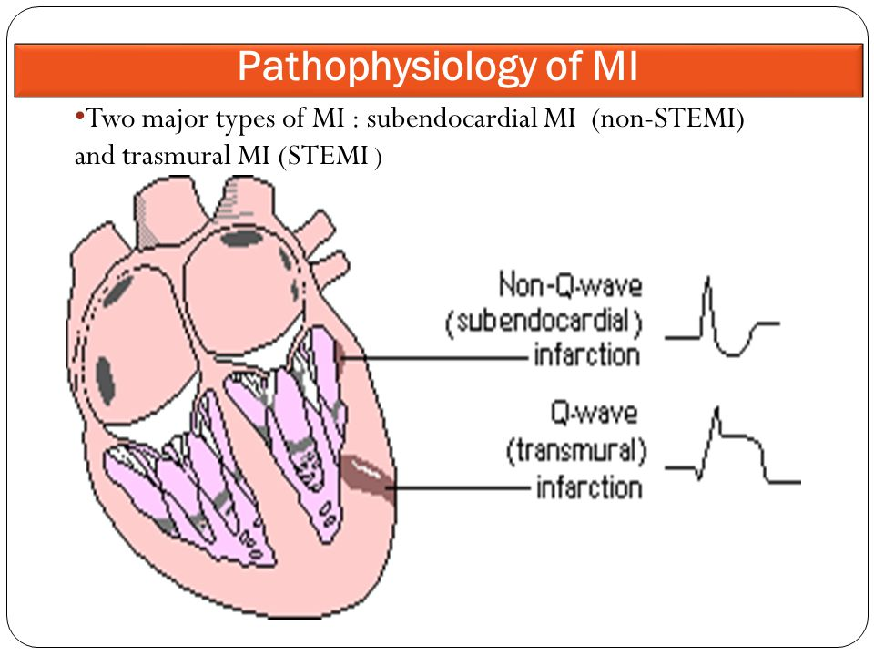 Two major types of MI : subendocardial MI (non-STEMI) and trasmural MI (STEMI ) Pathophysiology of MI