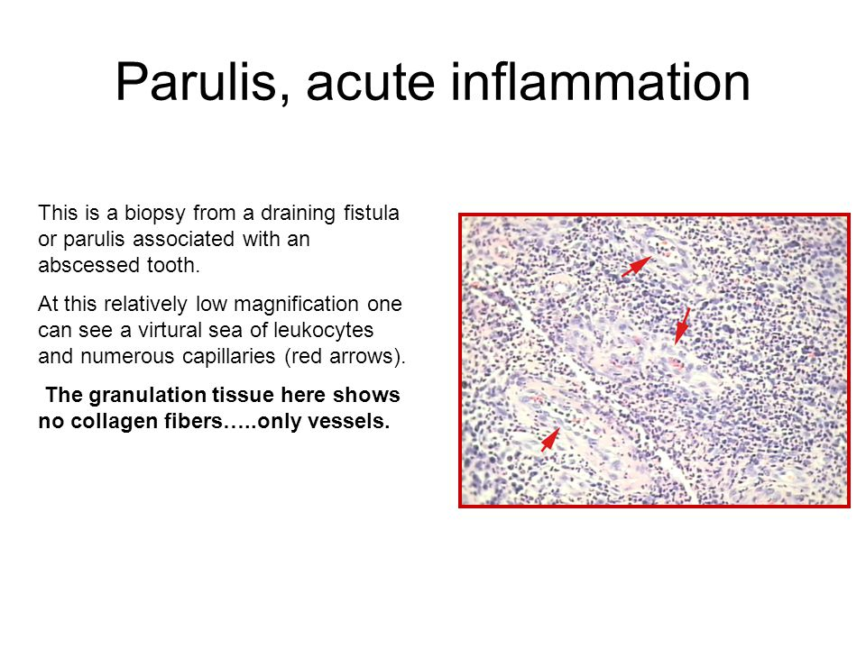 Parulis, acute inflammation This is a biopsy from a draining fistula or parulis associated with an abscessed tooth.