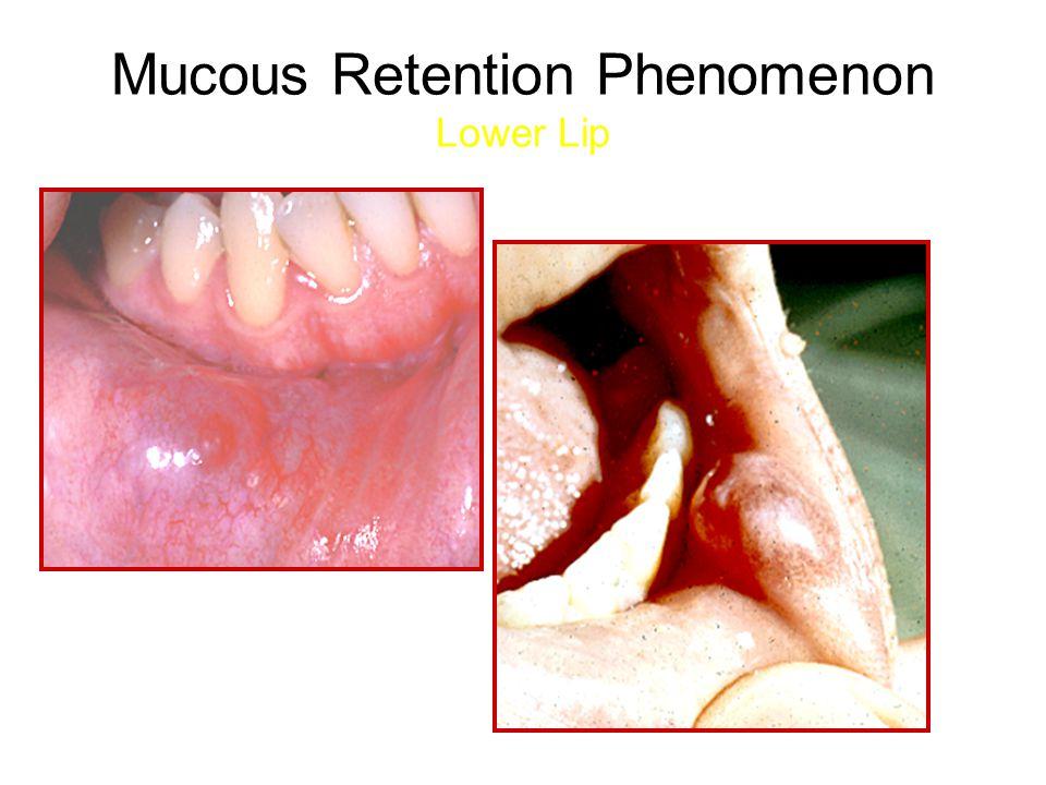 Mucous Retention Phenomenon Lower Lip