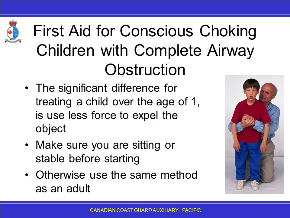 CANADIAN COAST GUARD AUXILIARY - PACIFIC First Aid for Conscious Choking Children with Complete Airway Obstruction The significant difference for trea