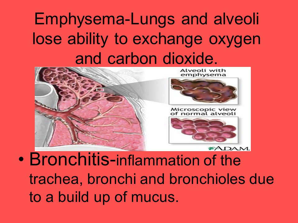 Emphysema-Lungs and alveoli lose ability to exchange oxygen and carbon dioxide. Bronchitis- inflammation of the trachea, bronchi and bronchioles due t