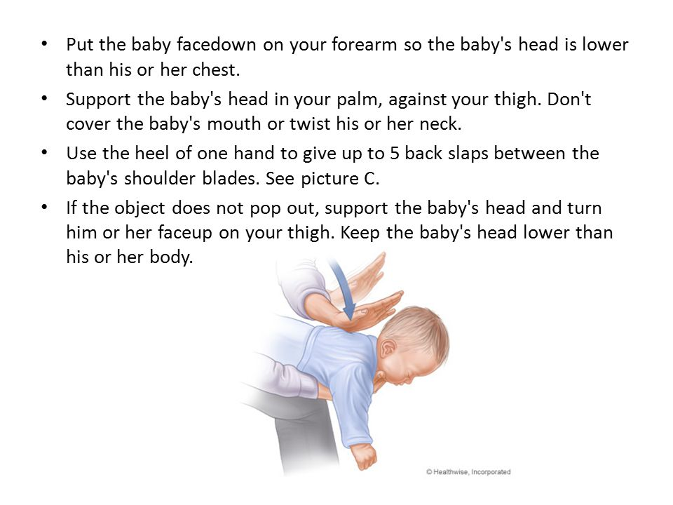 * Place 2 or 3 fingers just below the nipple line on the baby s breastbone and give 5 quick chest thrusts (same position as chest compressions in CPR for a baby).
