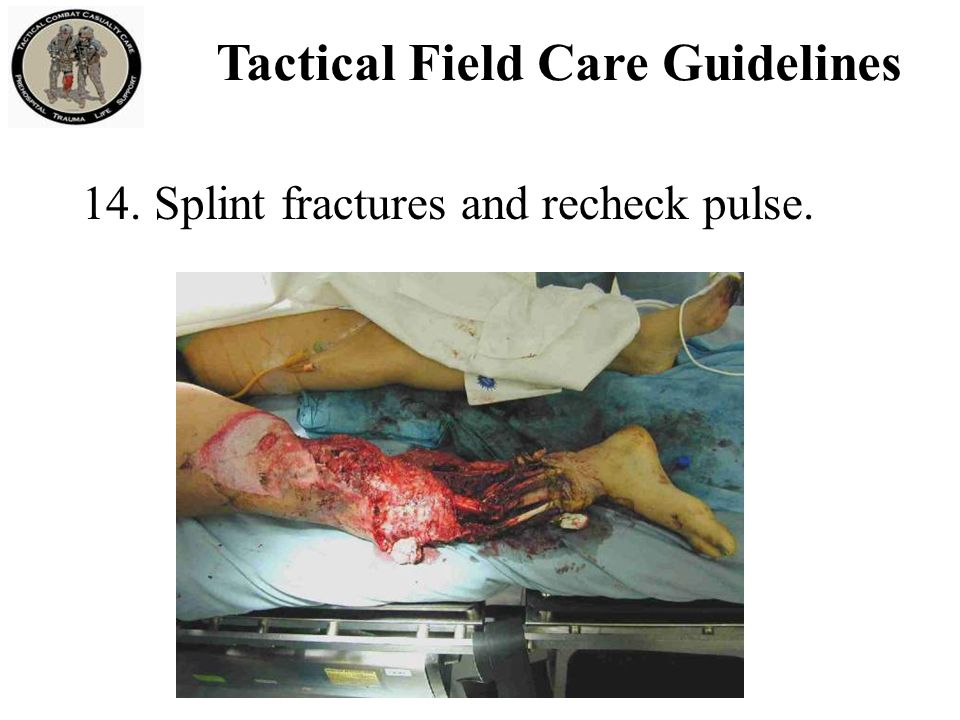 Fractures: Open or Closed Open Fracture – associated with an overlying skin wound Closed Fracture – no overlying skin wound Open fracture Closed fracture