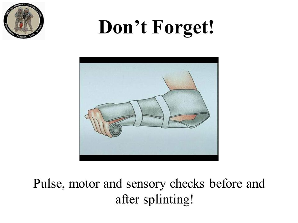 Don't Forget! Pulse, motor and sensory checks before and after splinting!