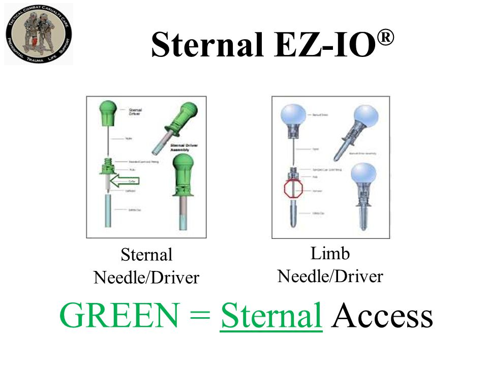 Contraindications: Fracture of the manubrium Previous surgical procedure Manubrial IO within the past 24 – 48 hours Infection at the insertion site Inability to locate landmarks or excessive tissue over the target site Sternal EZ-IO ®