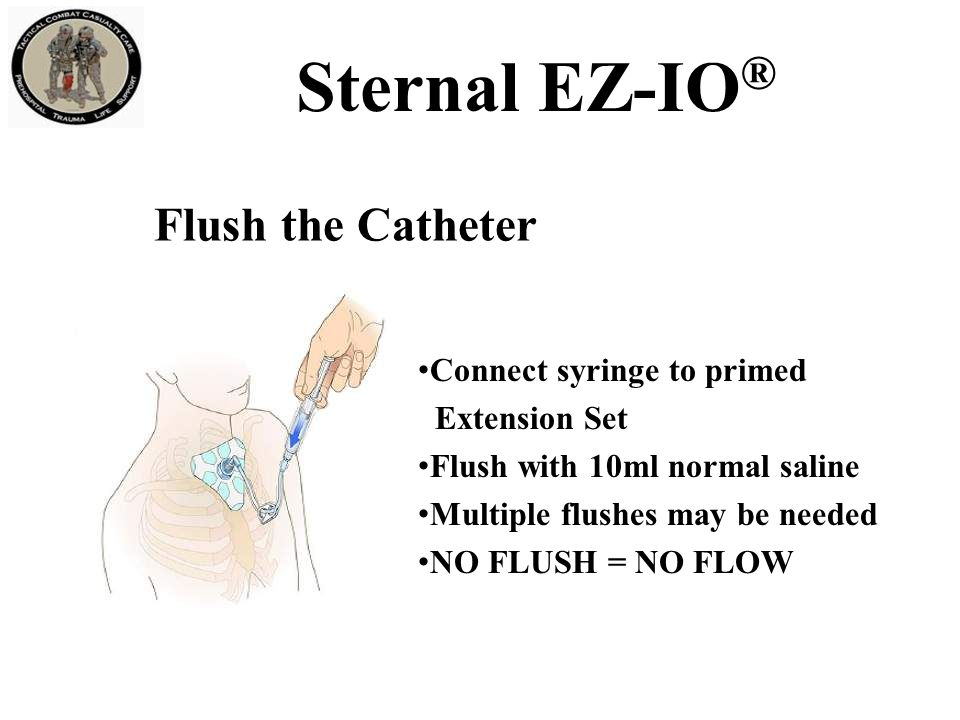 Sternal EZ-IO ® Infuse Fluids with Pressure The pressure in the medullary space is about 1/3 of the casualty's arterial pressure.