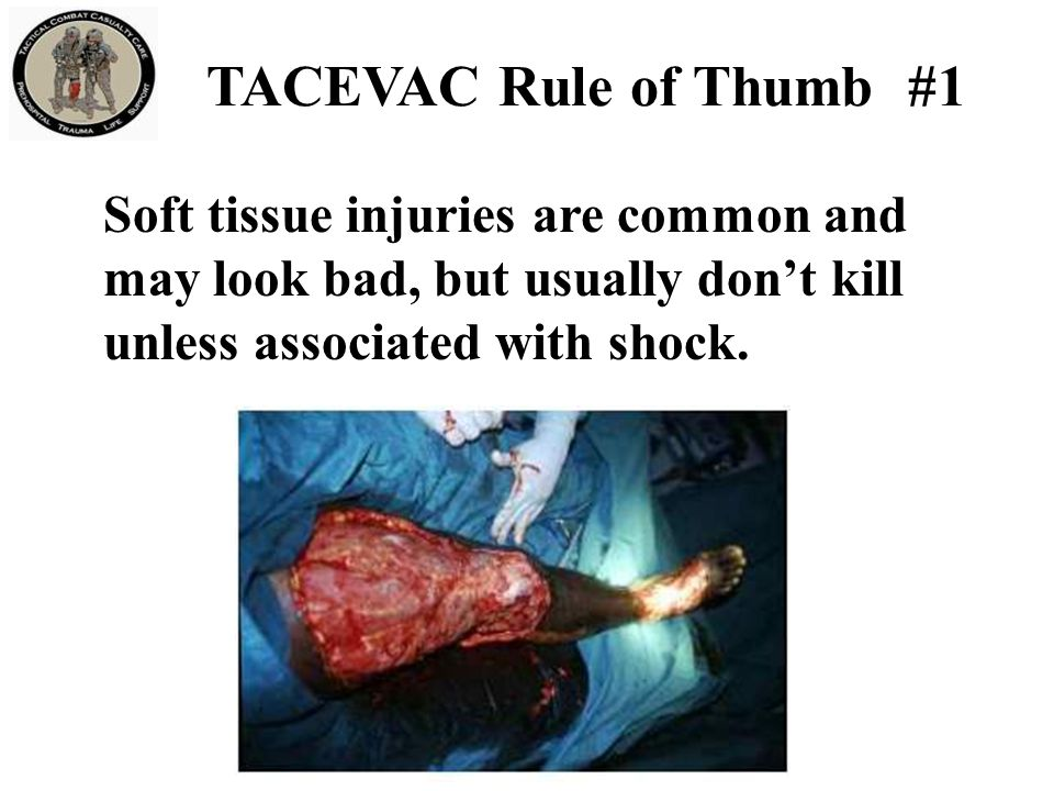 Bleeding from most extremity wounds should be controllable with a tourniquet or hemostatic dressing.