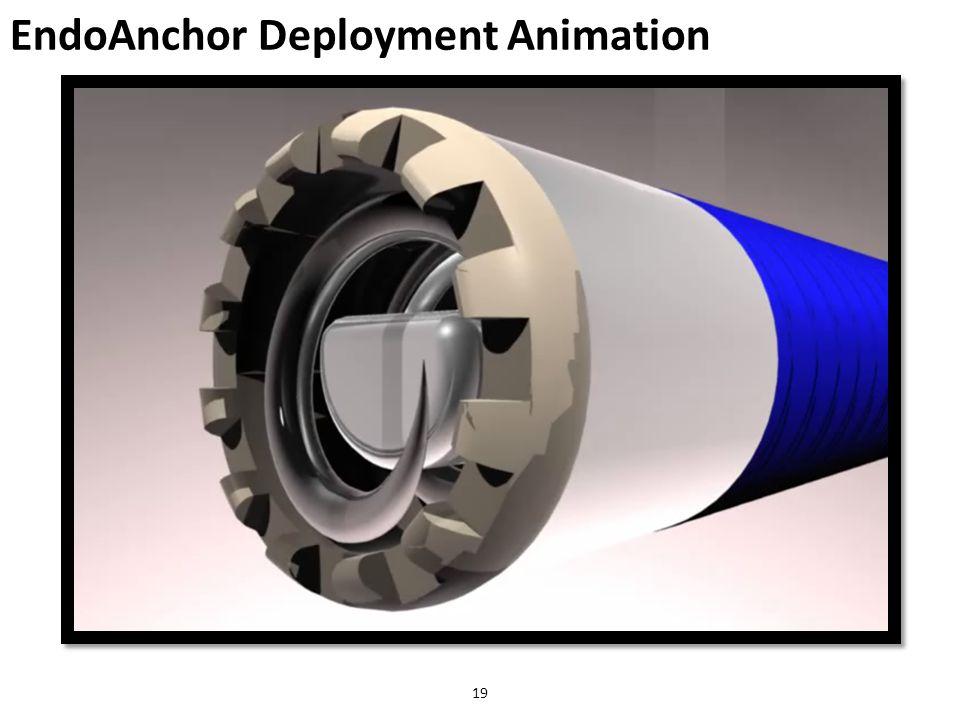 EndoAnchor Deployment Animation 19