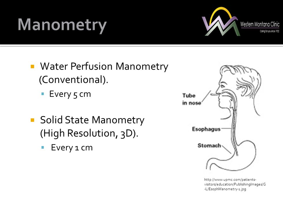  Water Perfusion Manometry (Conventional).  Every 5 cm  Solid State Manometry (High Resolution, 3D).  Every 1 cm http://www.upmc.com/patients- vis