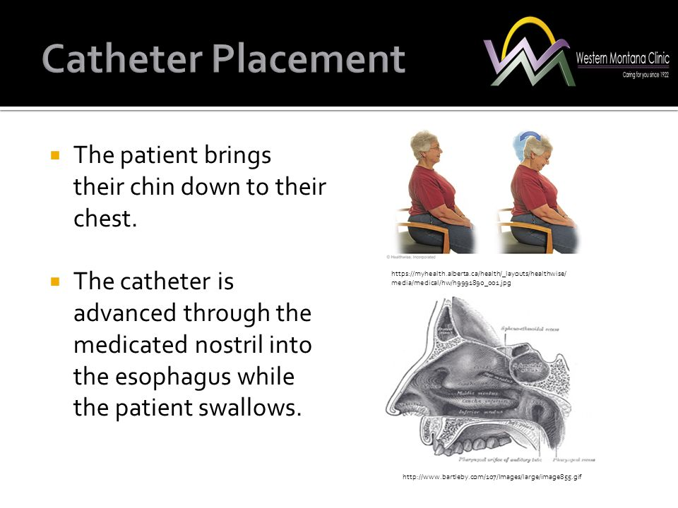  The patient brings their chin down to their chest.  The catheter is advanced through the medicated nostril into the esophagus while the patient swa