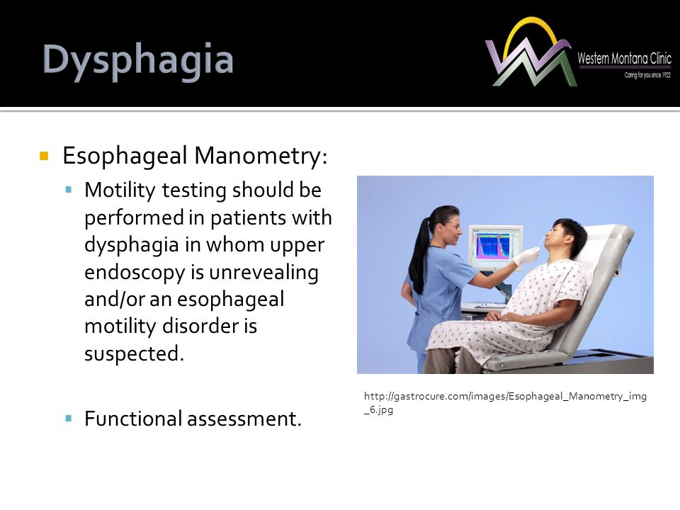  Esophageal Manometry:  Motility testing should be performed in patients with dysphagia in whom upper endoscopy is unrevealing and/or an esophageal