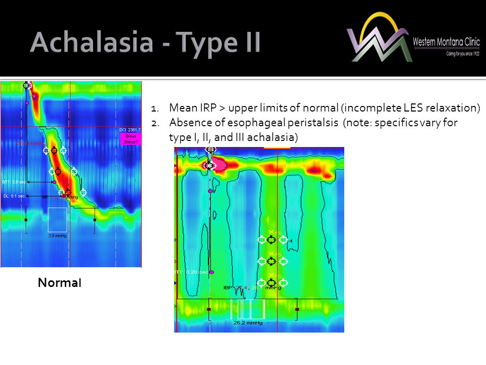 Norma l 1.Mean IRP > upper limits of normal (incomplete LES relaxation) 2.Absence of esophageal peristalsis (note: specifics vary for type I, II, and