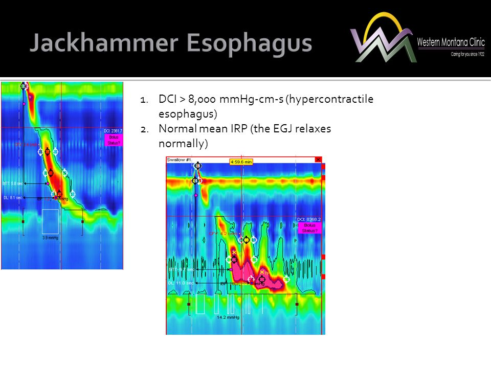 1.DCI > 8,000 mmHg-cm-s (hypercontractile esophagus) 2.Normal mean IRP (the EGJ relaxes normally)