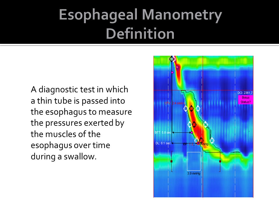 A diagnostic test in which a thin tube is passed into the esophagus to measure the pressures exerted by the muscles of the esophagus over time during