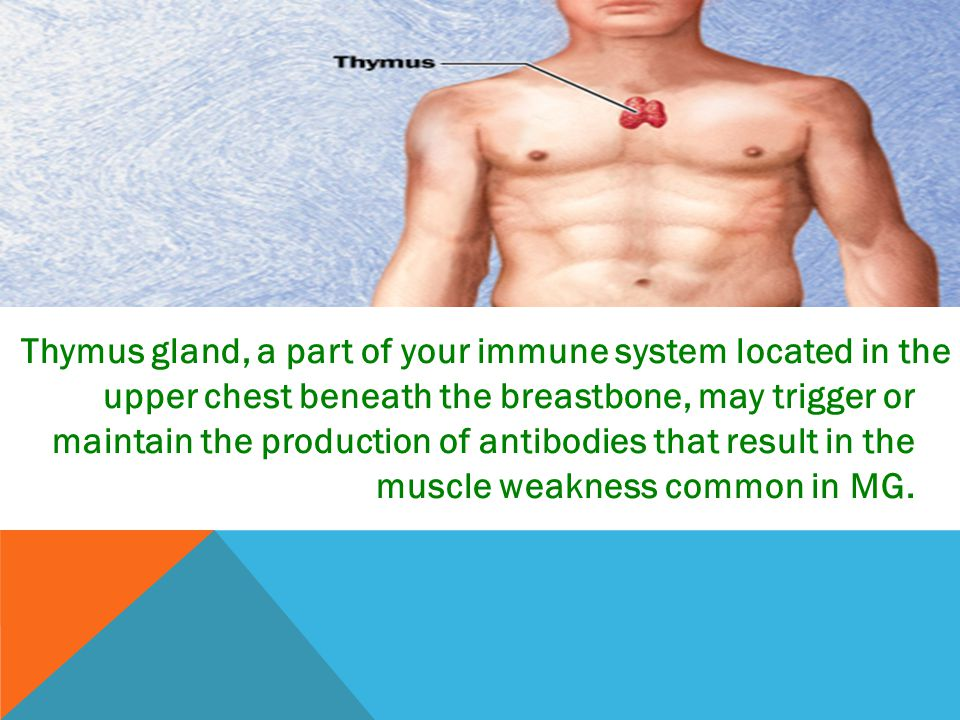 Thymus gland, a part of your immune system located in the upper chest beneath the breastbone, may trigger or maintain the production of antibodies that result in the muscle weakness common in MG.