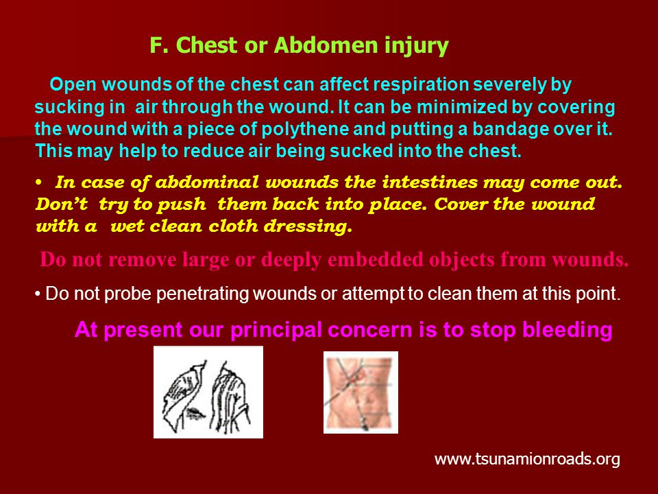 Open wounds of the chest can affect respiration severely by sucking in air through the wound.