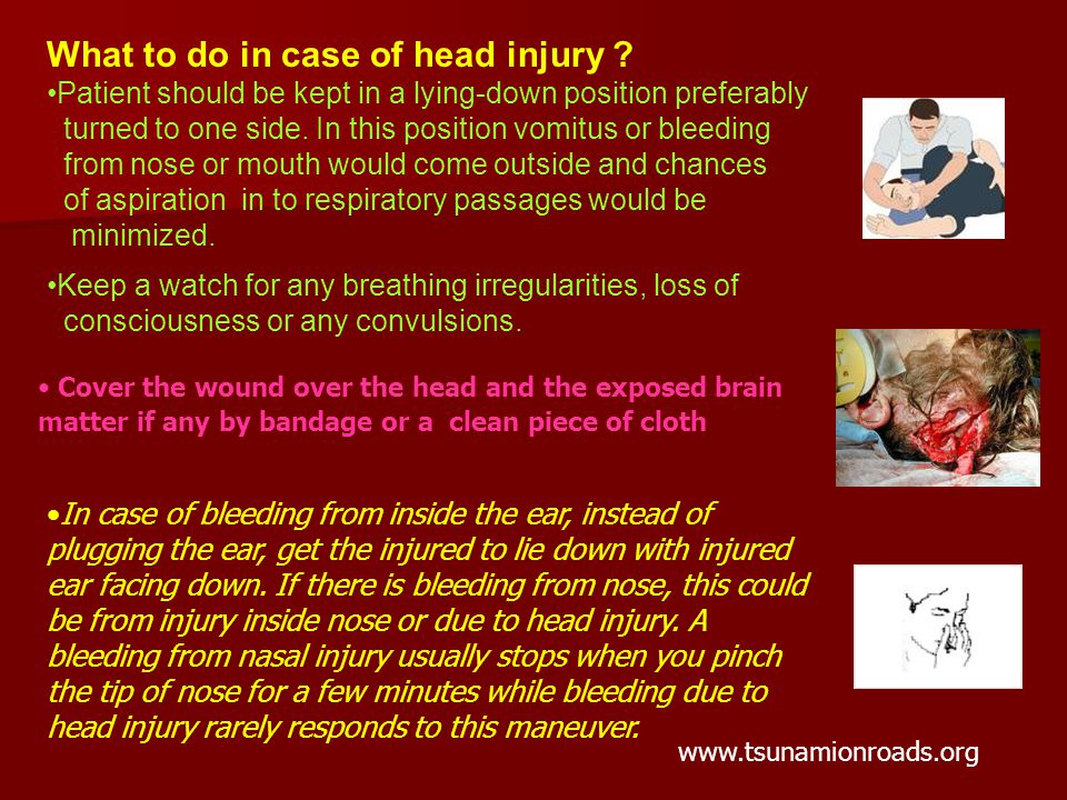 What to do in case of head injury .