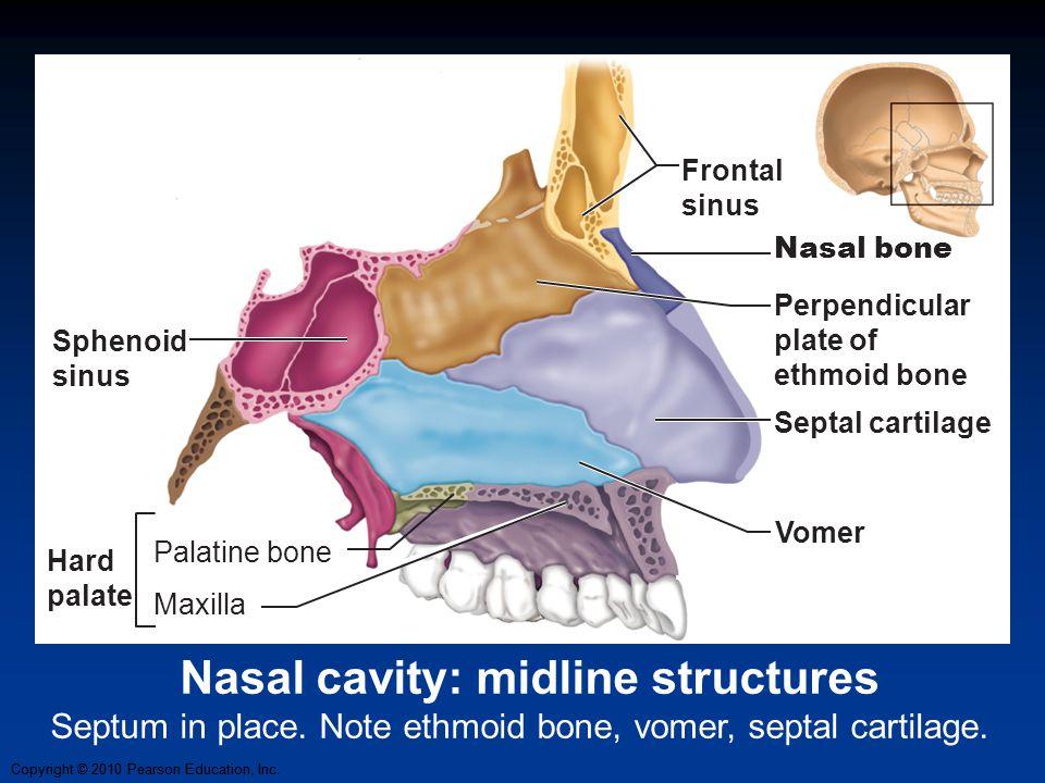 Copyright © 2010 Pearson Education, Inc. Vomer Frontal sinus Nasal bone Septal cartilage Perpendicular plate of ethmoid bone Sphenoid sinus Palatine b