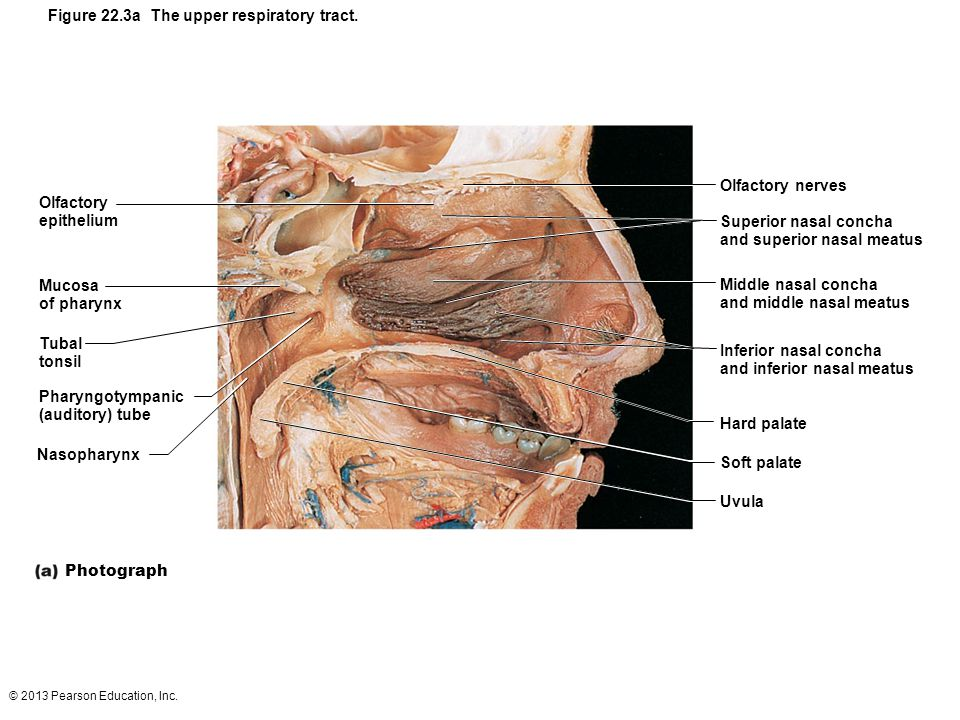 © 2013 Pearson Education, Inc. Figure 22.3a The upper respiratory tract. Olfactory epithelium Mucosa of pharynx Tubal tonsil Pharyngotympanic (auditor