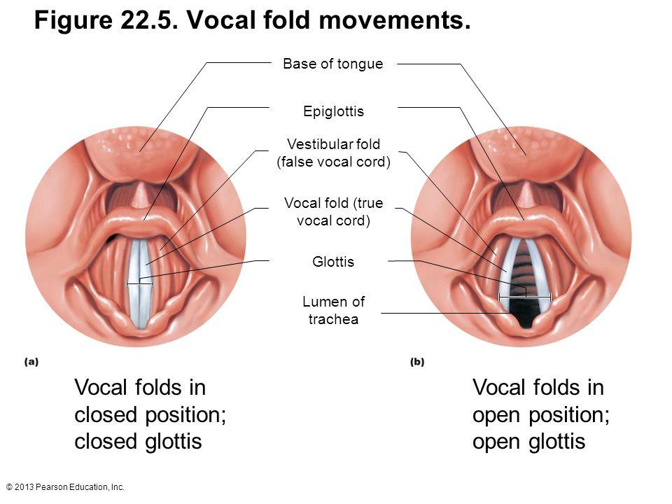 © 2013 Pearson Education, Inc. Figure 22.5. Vocal fold movements. Vestibular fold (false vocal cord) Base of tongue Epiglottis Vocal fold (true vocal