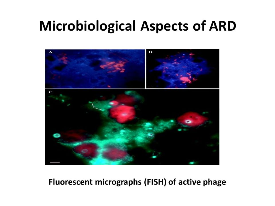 Microbiological Aspects of ARD Fluorescent micrographs (FISH) of active phage
