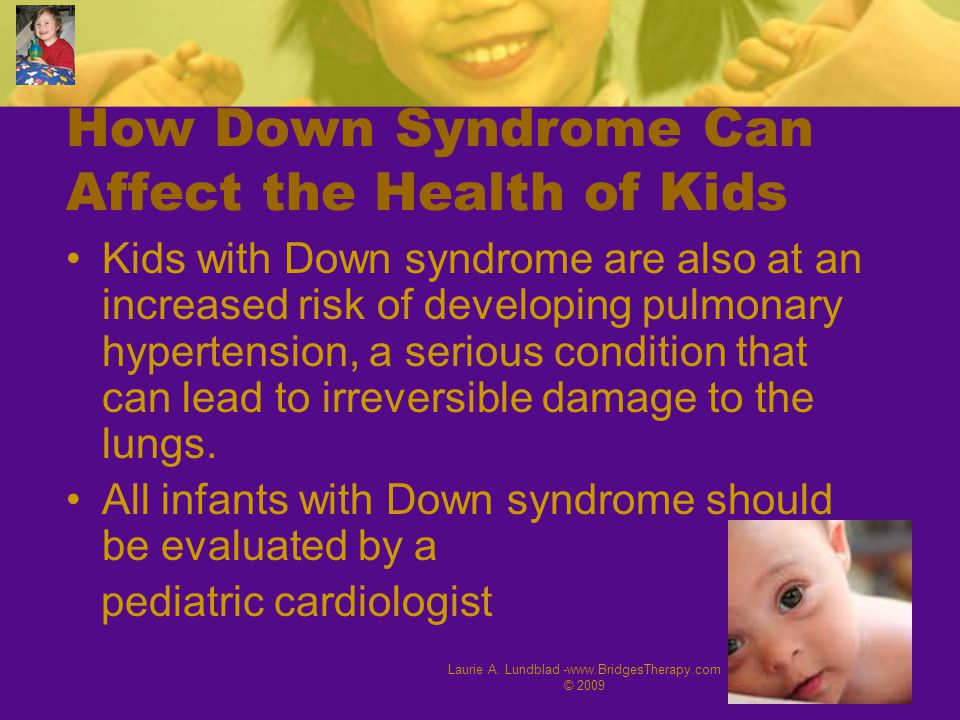 Laurie A. Lundblad -www.BridgesTherapy.com © 2009 19 How Down Syndrome Can Affect the Health of Kids Kids with Down syndrome are also at an increased