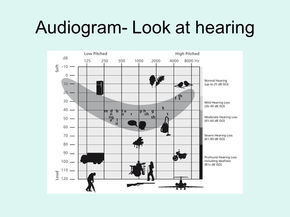 Classroom Modifications Use closed captioning when available Face the student when speaking Seat the student close to the instructional area Provide written notes Use amplification Repeat information