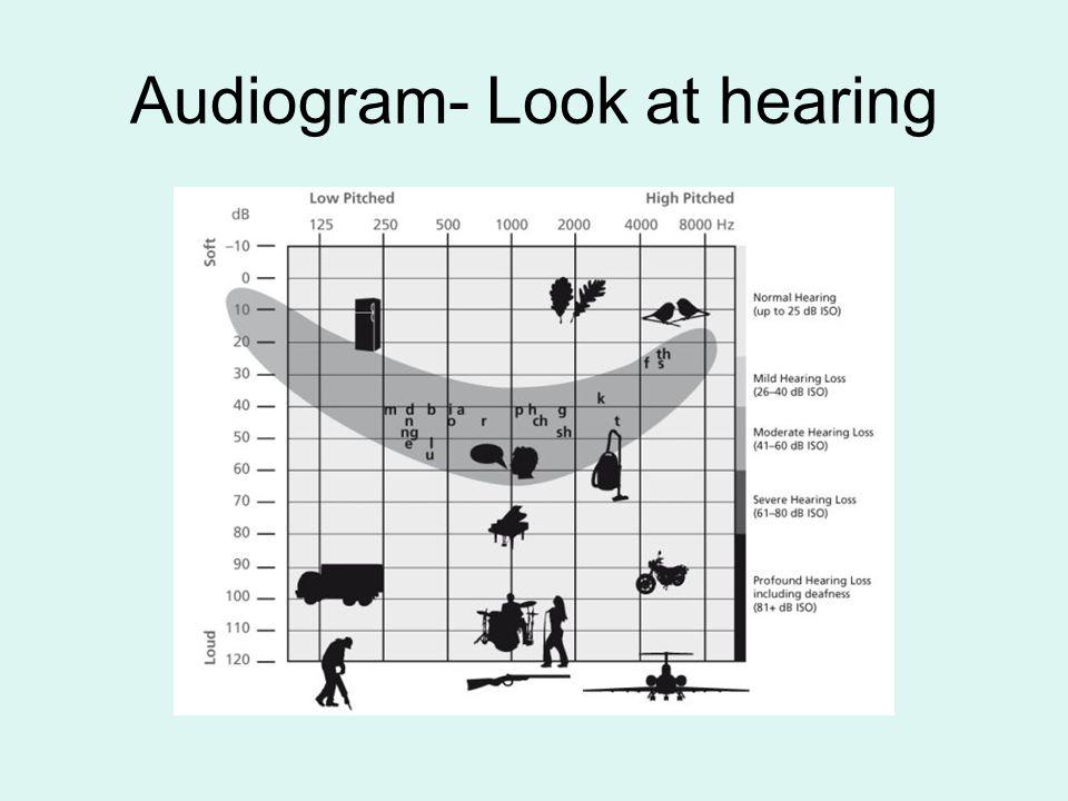 Hearing Test http://phonak.com/phonak/us/b2c/en/heari ng/recognizing_hearingloss/hearingtest.ht mlhttp://phonak.com/phonak/us/b2c/en/heari ng/recognizing_hearingloss/hearingtest.ht ml