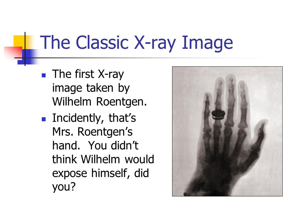 The Classic X-ray Image The first X-ray image taken by Wilhelm Roentgen.
