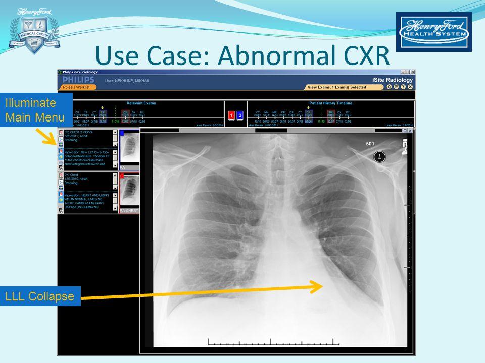 Illuminate Main Menu LLL Collapse Use Case: Abnormal CXR