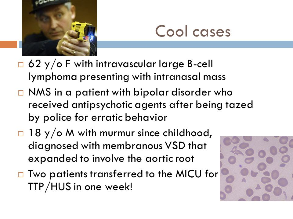 Cool cases  62 y/o F with intravascular large B-cell lymphoma presenting with intranasal mass  NMS in a patient with bipolar disorder who received antipsychotic agents after being tazed by police for erratic behavior  18 y/o M with murmur since childhood, diagnosed with membranous VSD that expanded to involve the aortic root  Two patients transferred to the MICU for TTP/HUS in one week!