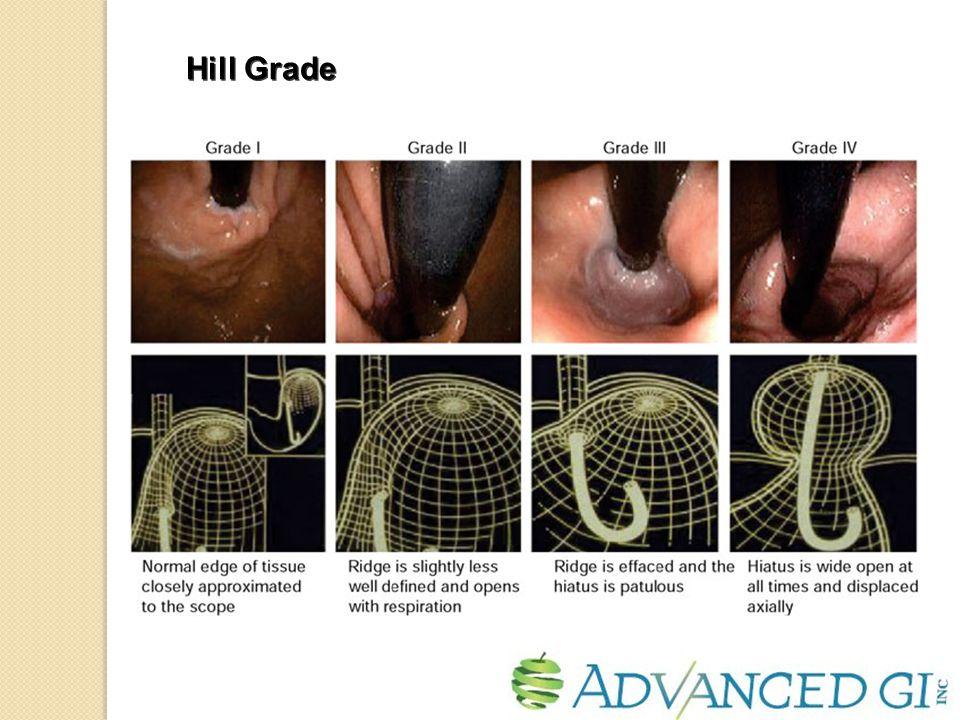 Hill Grade