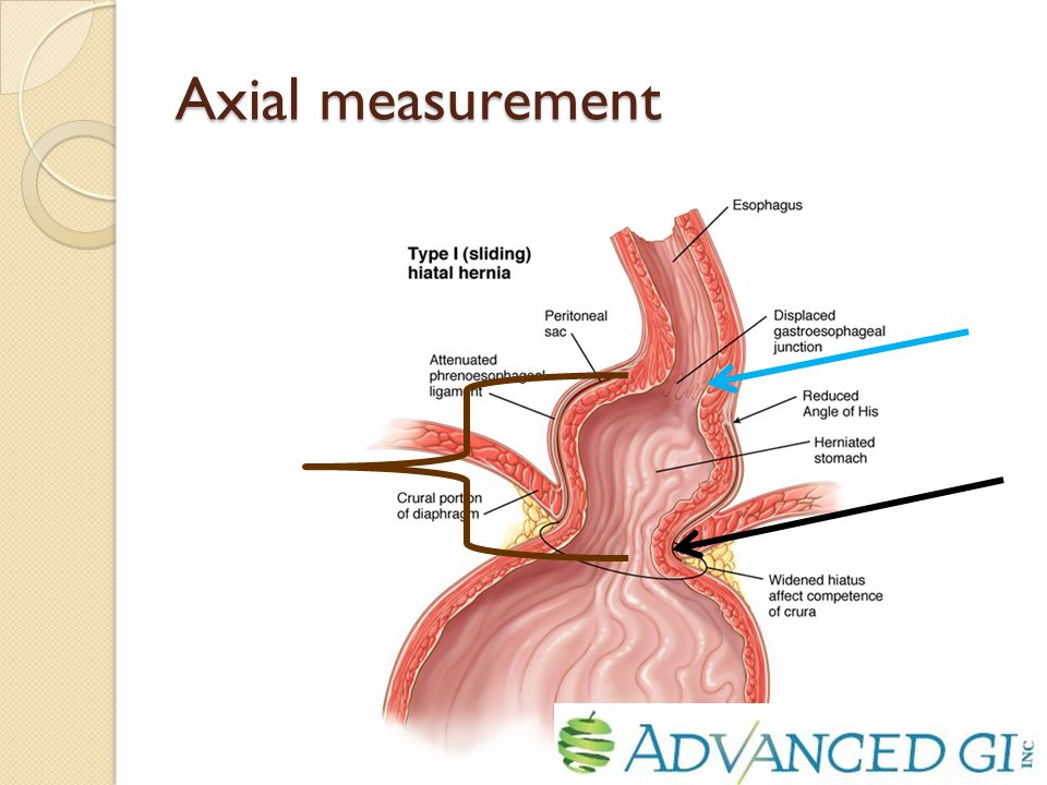 Axial measurement