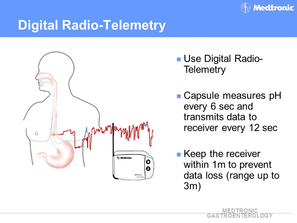 MEDTRONIC GASTROENTEROLOGY Use Digital Radio- Telemetry Capsule measures pH every 6 sec and transmits data to receiver every 12 sec Keep the receiver
