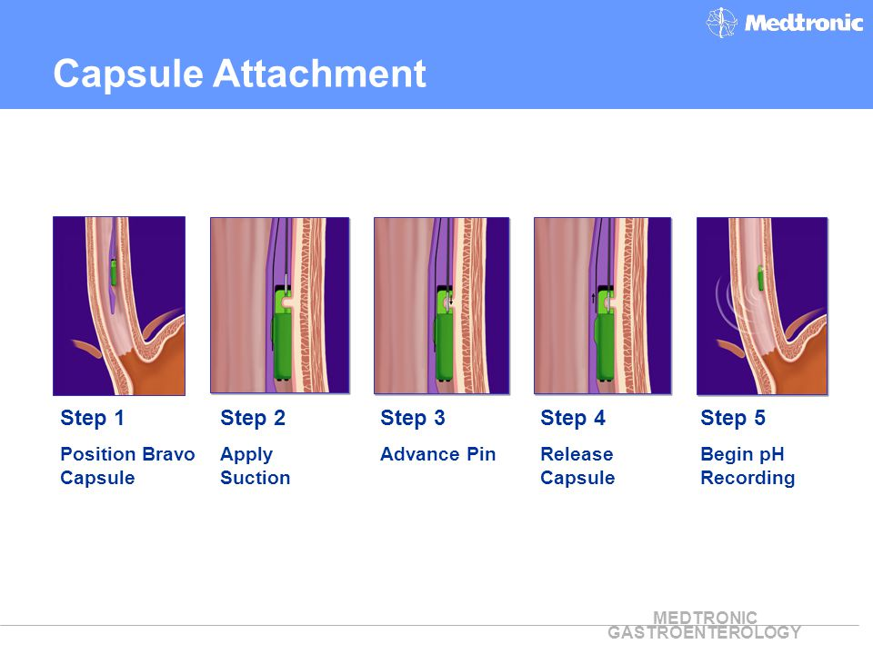 MEDTRONIC GASTROENTEROLOGY Step 1 Position Bravo Capsule Step 2 Apply Suction Step 3 Advance Pin Step 5 Begin pH Recording Step 4 Release Capsule Caps